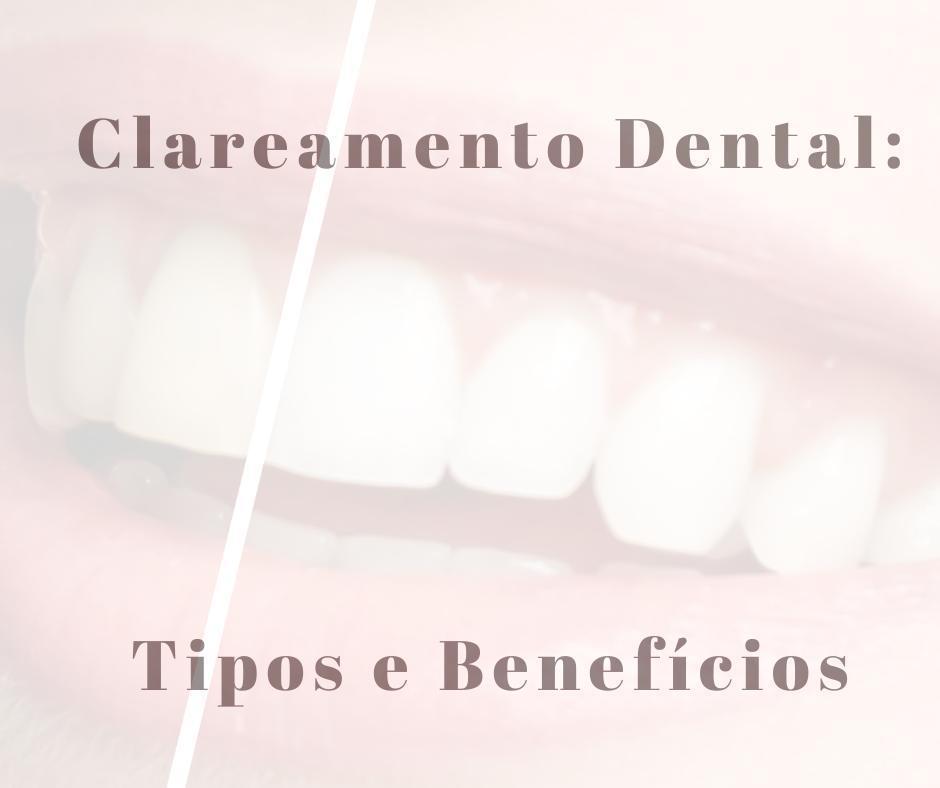 Clareamento dental - tipos e benefícios