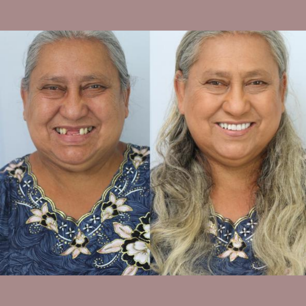ideal estetica oral implante e prótese