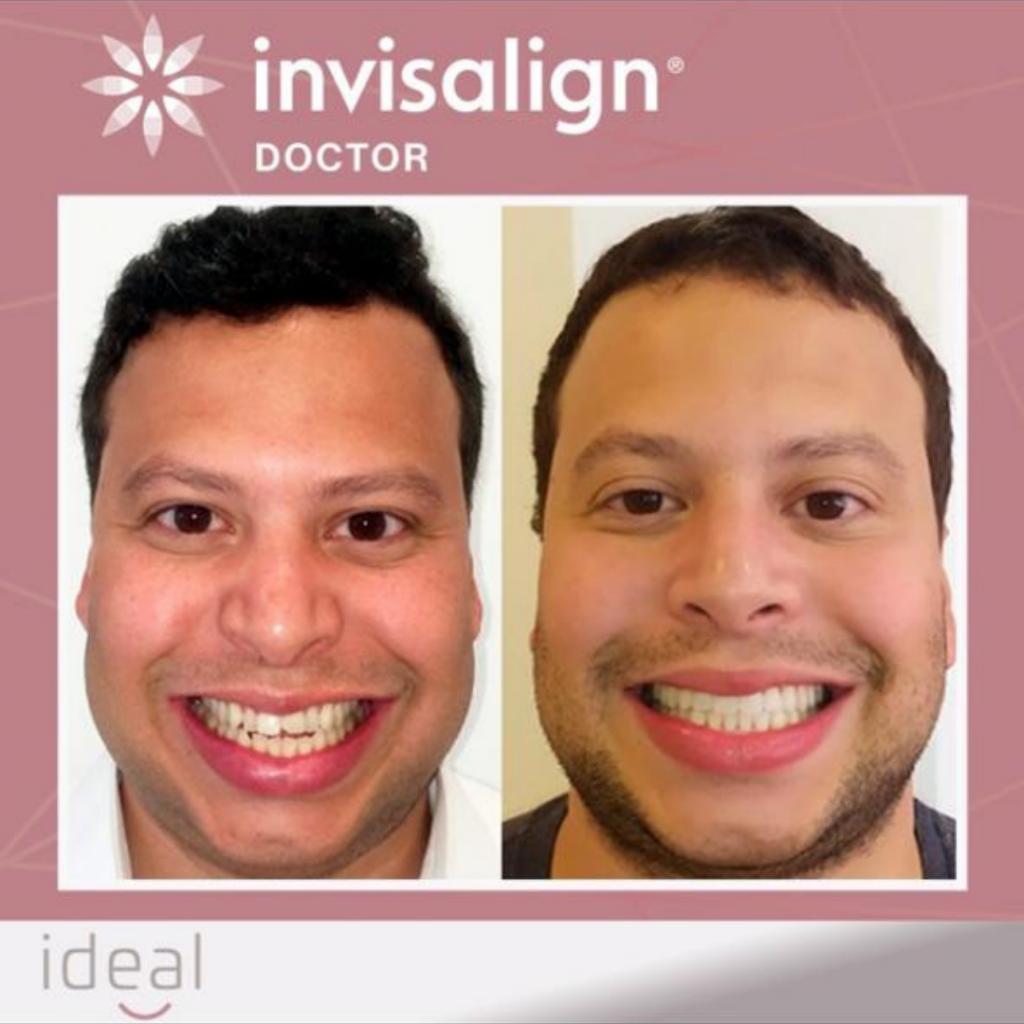 ideal estetica oral invisalign